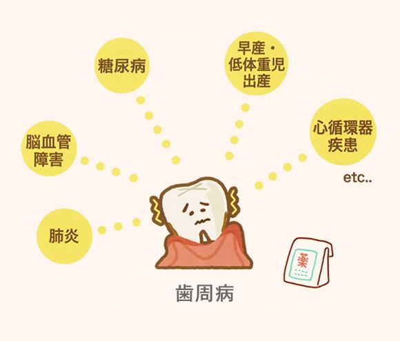 歯周病と関連している疾患