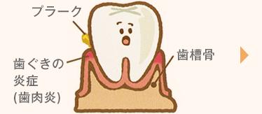 気づかないうちに進行する歯周病